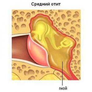 Кондуктивный тип недуга фото