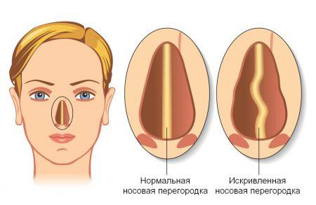 Исправление носовой перегородки операцией
