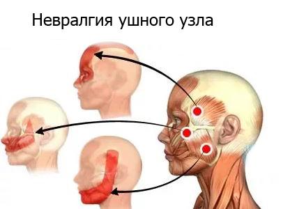 Боли при ОРВИ и удалении зуба