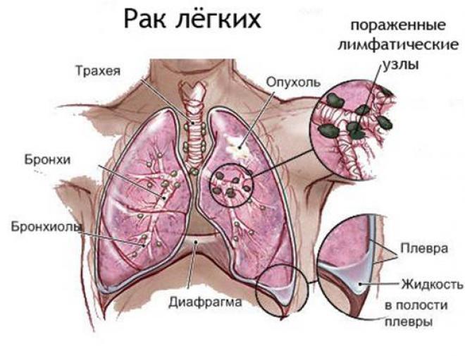сколько живут люди с онкологией легких