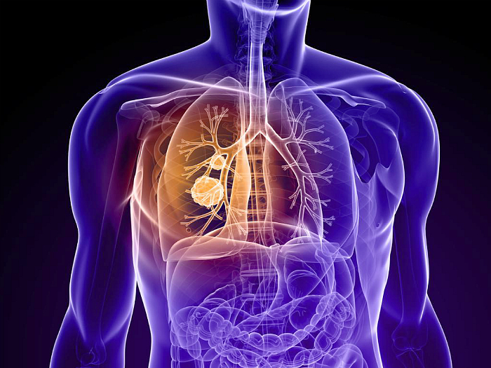 Рак губы, симптомы и первые признаки