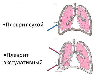 Заболевания дыхательных органов