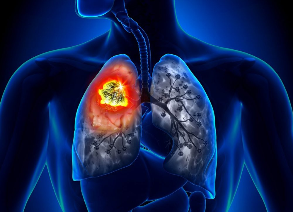 Сколько живут с раком легкого без лечения. Рак легких: сколько живут больные