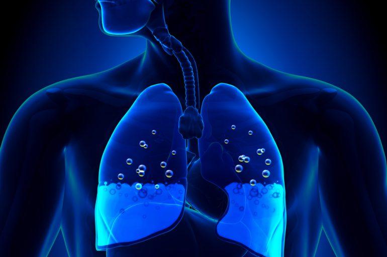Жидкость в легких как лечить