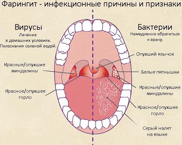 Болит скула и челюсть возле уха справа или слева, больно жевать, отдает в ухо: причины, первая помощь и последующая терапия в домашних условиях