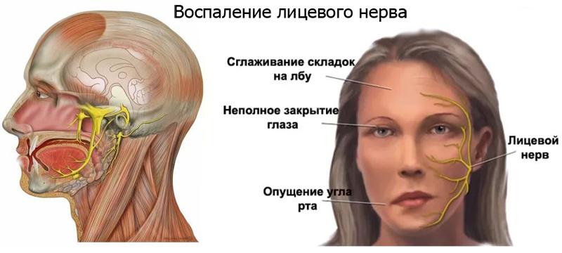 Воспаление нервов