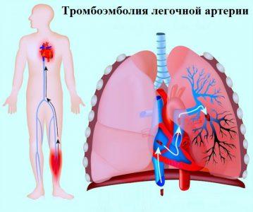 Эмболия легочной артерии
