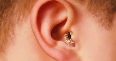 Можно ли капать перекись водорода в ухо при лечении