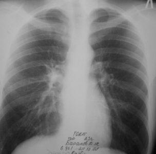 Механизм изменений и заболевания легких