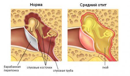 Симптомы среднего отита