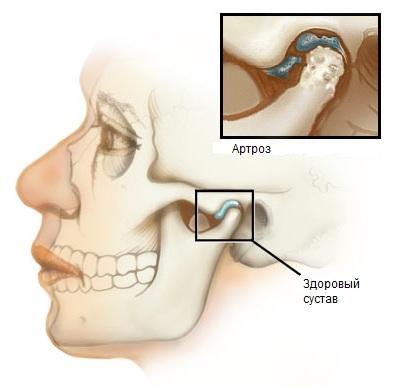 Шум в ухе при движении челюстью