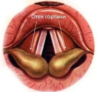 аллергия горла симптомы фото